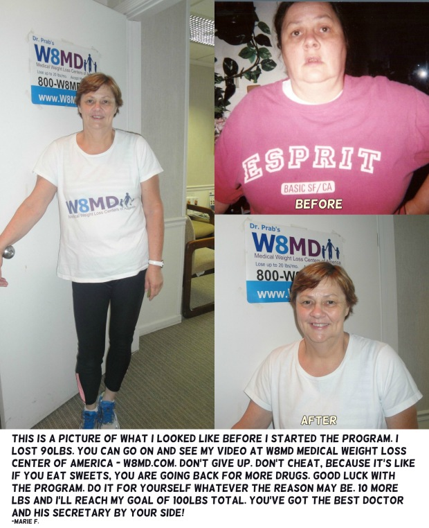 Before and after weight loss NYC